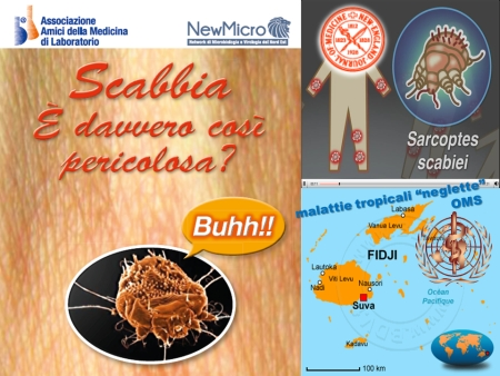 Scabbia: è davvero cosi pericolosa?