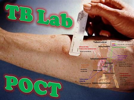 tb-lab-poct-nm