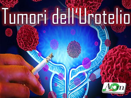 tumori-dellurotelionm