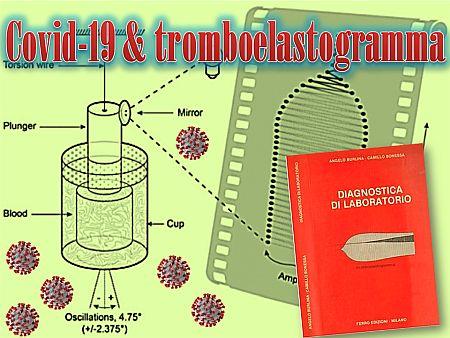 covid-tromboelastogrammanm