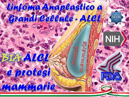 """ALCL """"classico"""" o BIA – ALCL?"""