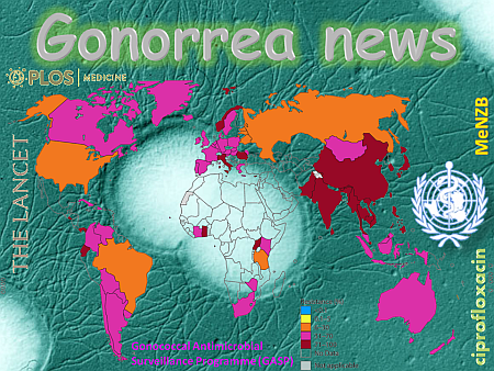 gonorrea-news-nm