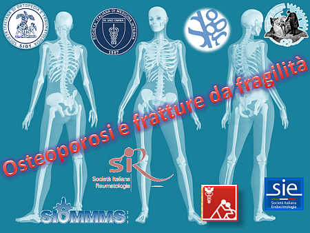 osteoporosi-nm
